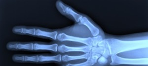 Historic England: Computed Radiography Scanner (Award)
